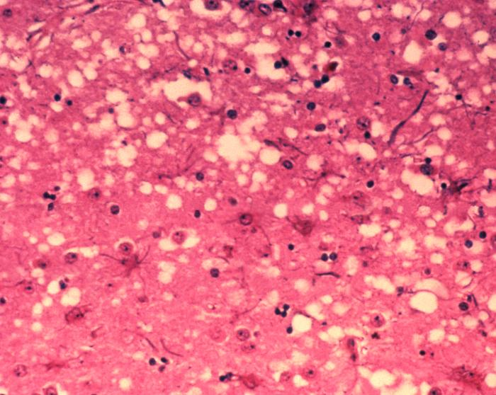"Characteristic pathology of prion diseases includes ""holes"" in the brain tissue."